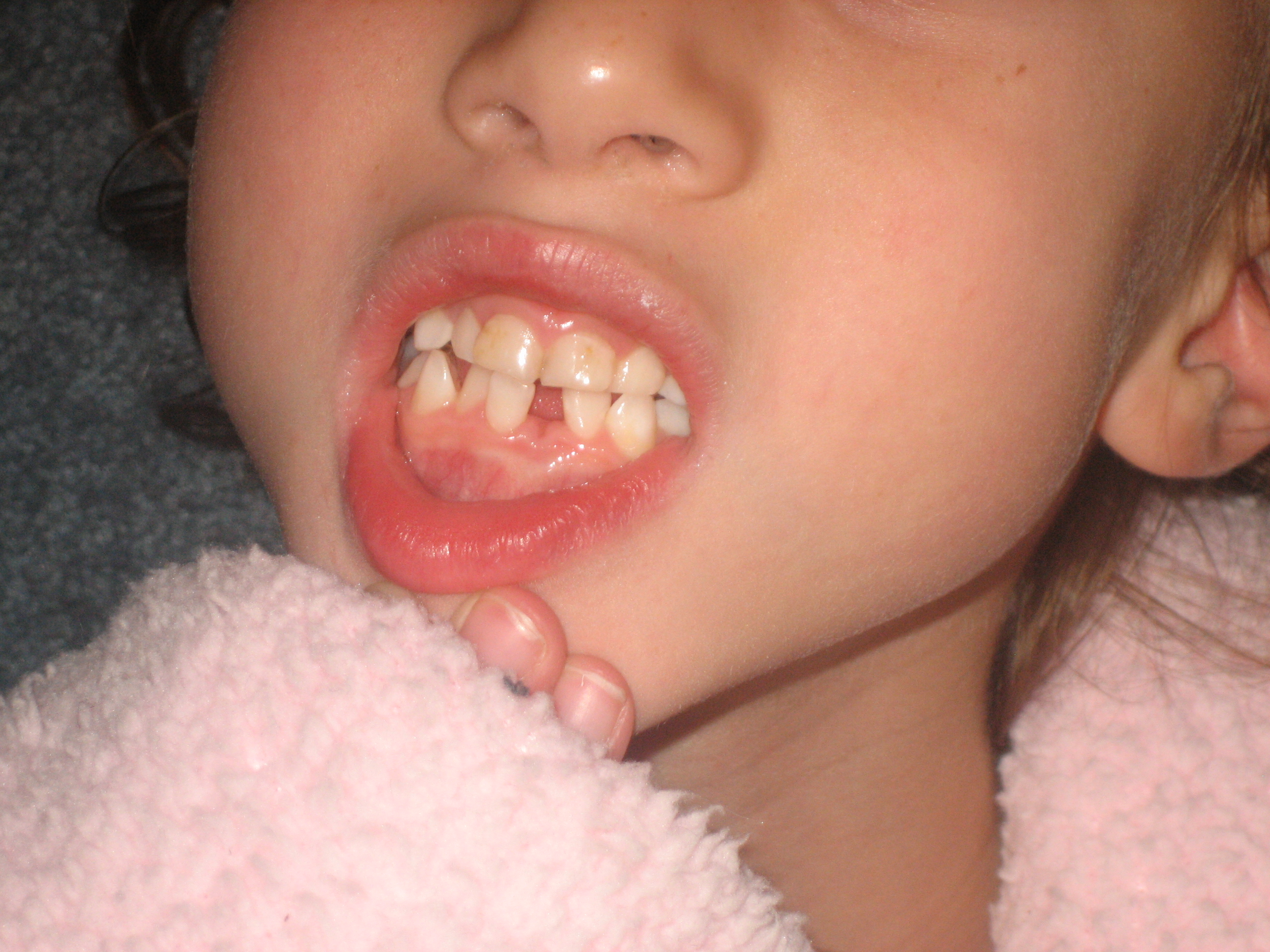 First Loose Tooth
